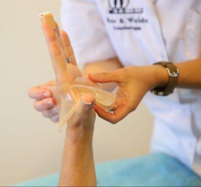Handfysiotherapie behandeling